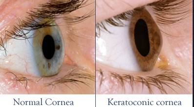 keratoconus image example